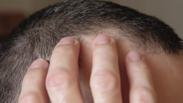 A mature man touches the scalp. Close-up of alopecia on the head. Care and hair care products. The impact of stress and the environment on human health. Barber shop concept.