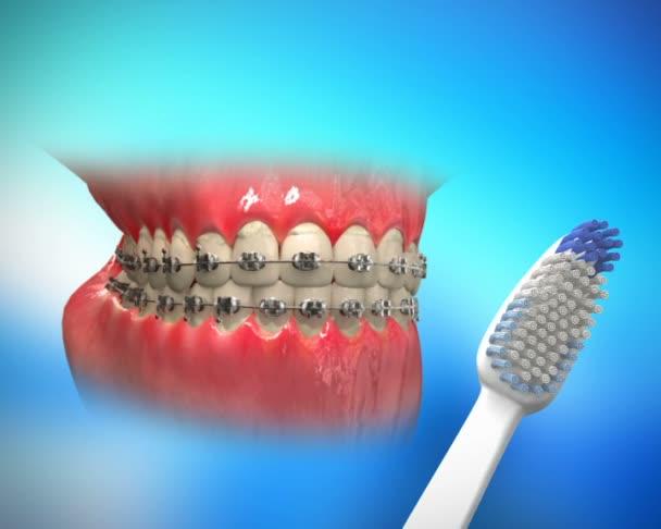 proces čištění zubů
