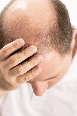 Baldness Alopecia man hair loss haircare