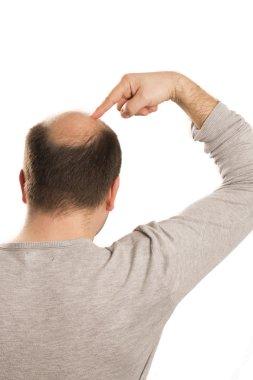 Baldness Alopecia man hair loss isolated