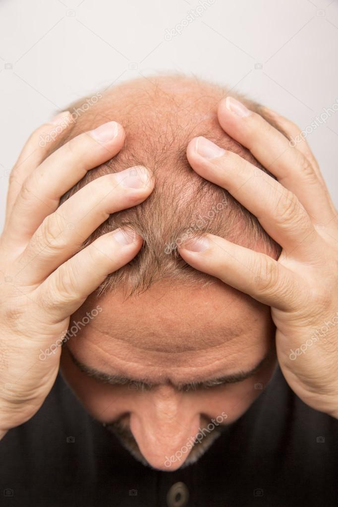 Uomo dello stress controlli alopecia perdita dei capelli trattamento cancro  — Foto di CatherineL-Prod f1798fe7f440