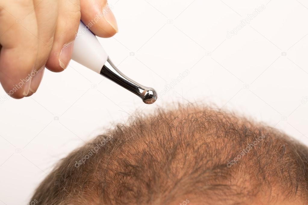 Uomo dello stress controlli alopecia perdita dei capelli trattamento cancro  — Foto di ... b0e4a6e1a887