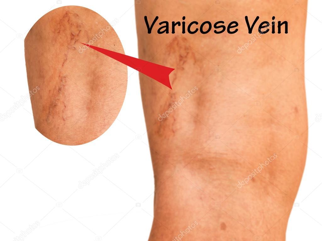 orb de vene varicoase