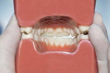 interior view of dental model