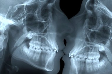 radiography of a kiss