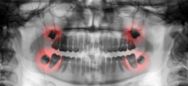 dental scan radiography