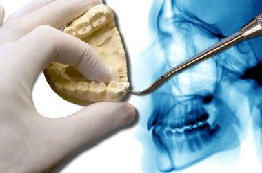 orthodontics tool show molar tooth over x-ray