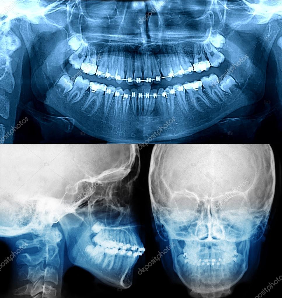 rayos x con aparatos dentales, ortodoncia — Fotos de Stock © mkarco ...