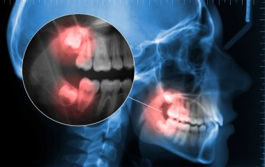 cephalometric and displaying toothache