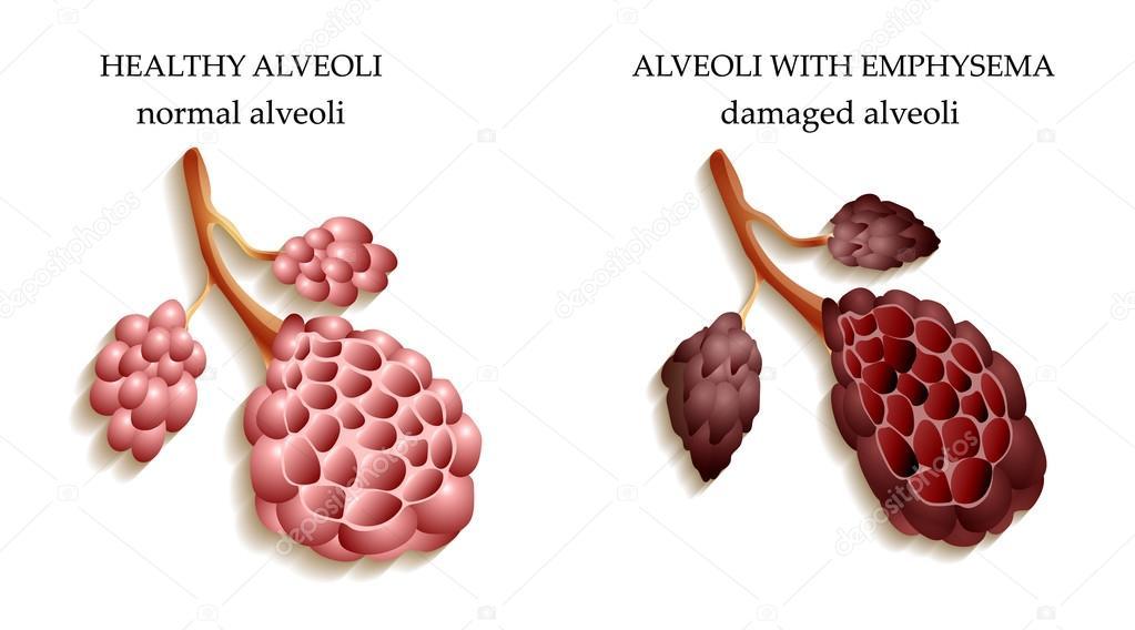 los pulmones de un saludable alvéolos persona y fumador — Vector de ...