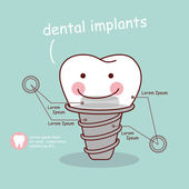 Fotografie niedliche Cartoon-Zahn-Implantat