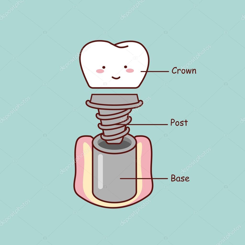 Anatomía del implante diente Linda de la historieta — Archivo ...