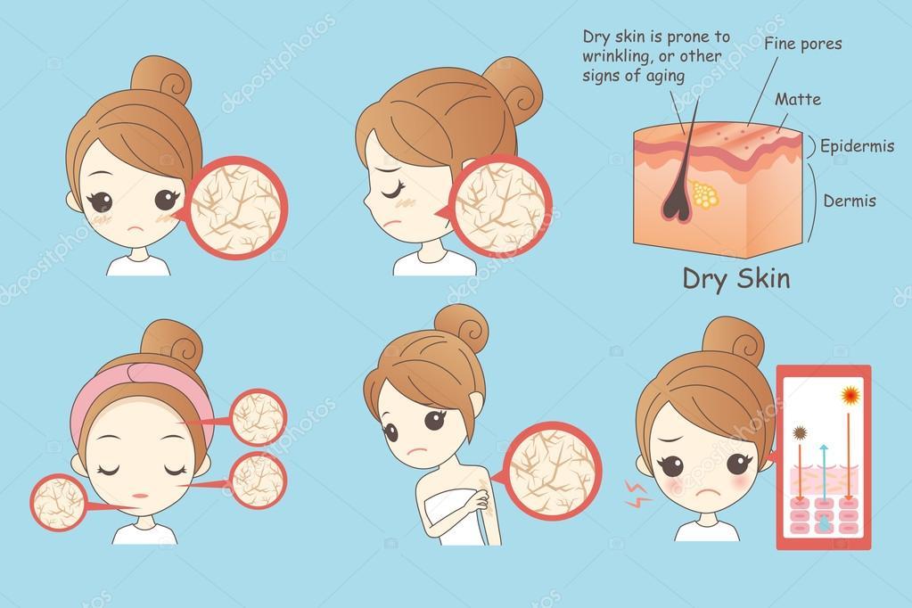Dry Face Cartoon Cartoon Woman Face Dry Skin Stock Vector C Etoileark 124032632