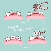 Karikatur Zahnimplantation Konzept