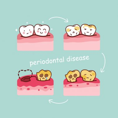 cartoon tooth periodontal disease