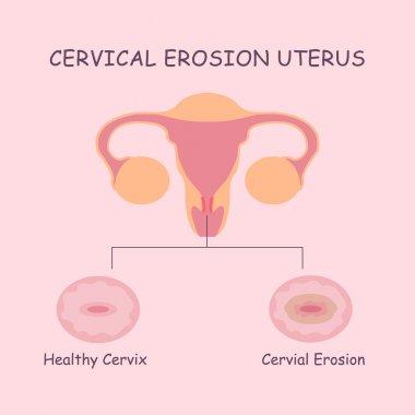 uterus and cervial erosion
