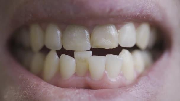 Ein Mann zeigt seine schiefen Zähne