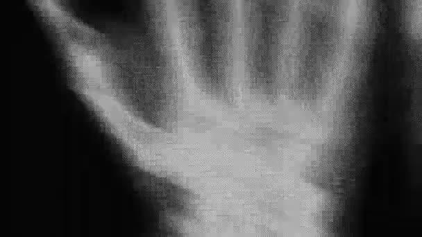 x-ray lidská kostra