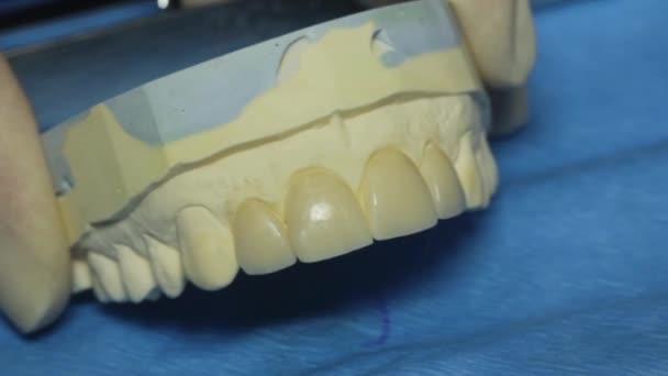 Zubní maketu čelisti, zubní protézy, zubní dýhy