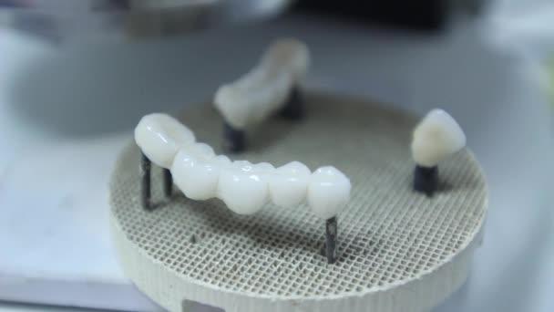 Dentures, Artificial Teeth