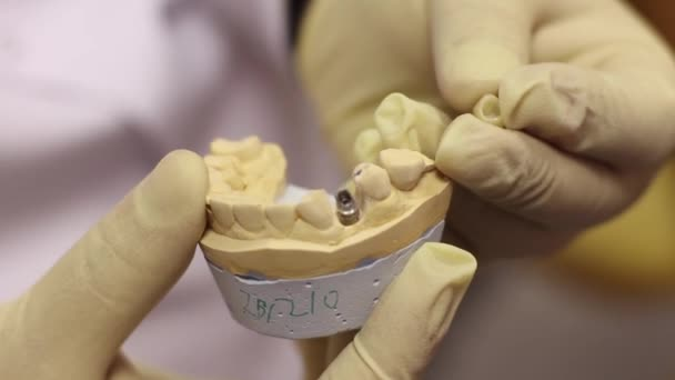 Example Of The Implant
