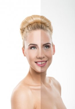 Before and after- Skin care