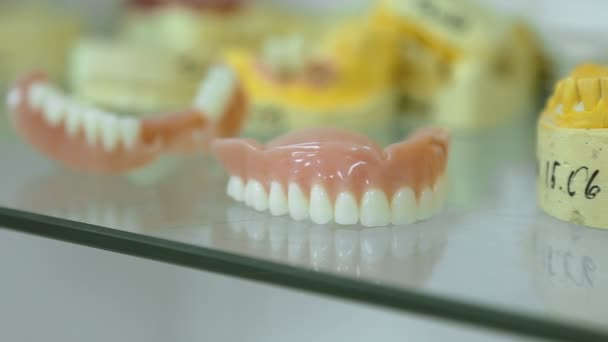 prosthetic dentistry. casts of the jaws