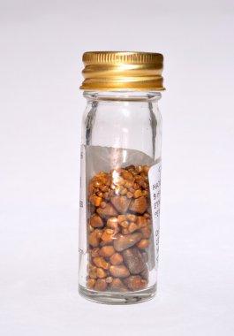 Gallstones in specimen jar from single operation.