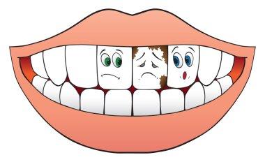 Two nervous teeth