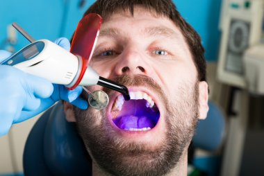 Doctor examines the oral cavity on tooth decay. Caries protection. Tooth decay treatment. Dentist working with dental polymerization lamp in oral cavity