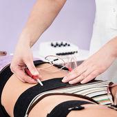 Elektrostimulation von Muskeln