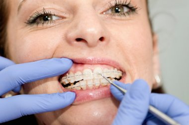 Orthodontist tightening braces to female patient
