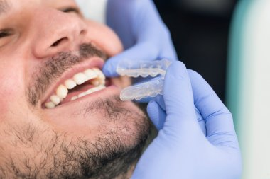 placing invisible braces to patient