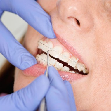 Tightening invisible ceramic braces