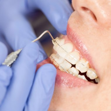 Orthodontist working with ceramic braces