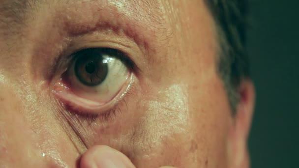 Dospělý muž, oči. Podrobné vyšetření očí.