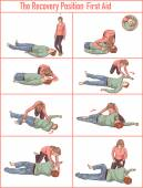 Photo vector illlustration of a Recovery position (first aid)