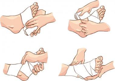 foot bandage technique