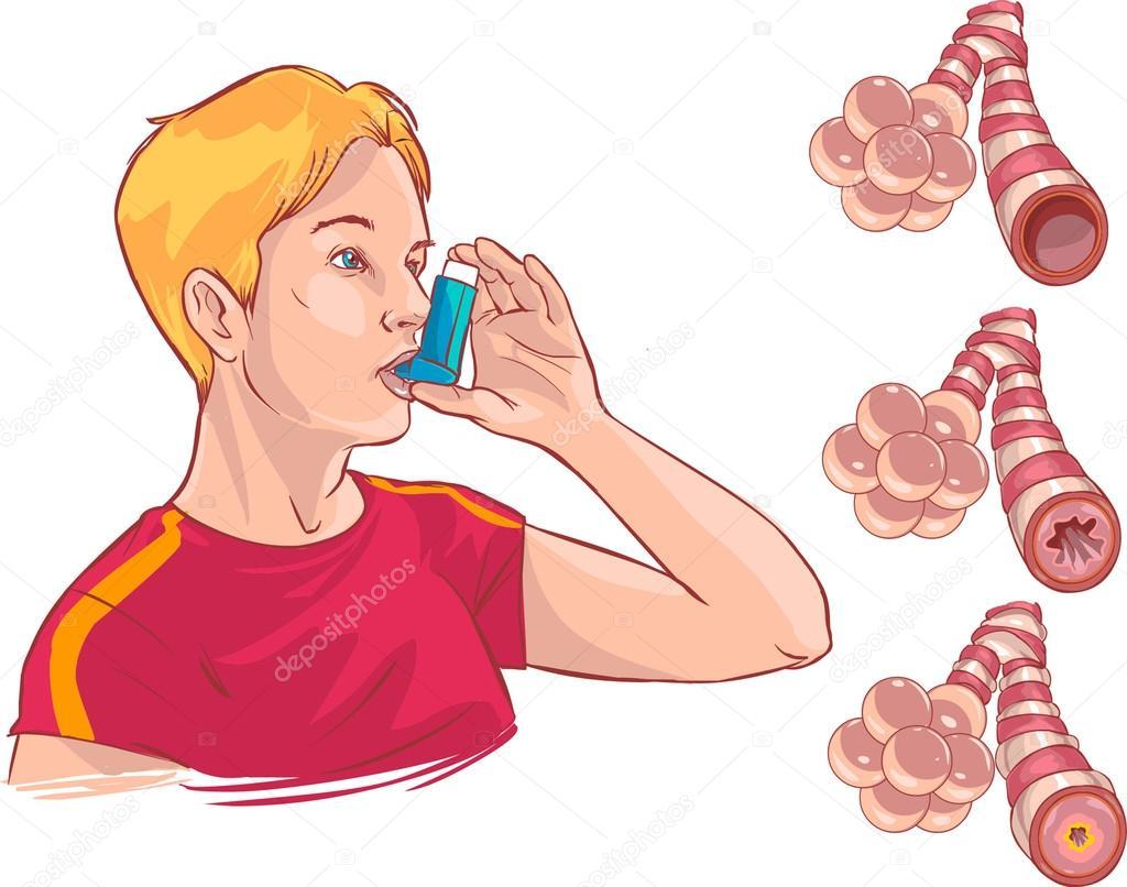 Anatomy of Asthma — Stock Vector © corbacserdar.gmail.com #95104800