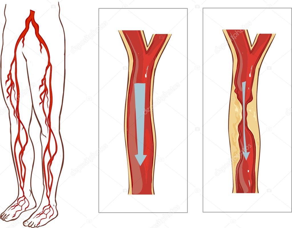 Vascular System Legs. Atherosclerosis in artery — Stock Vector ...