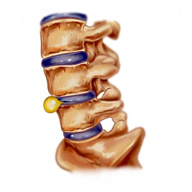 vector illustration of a slipped disc