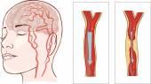Hirnanatomie-Diagramm mit in verschiedenen Farben geschnitten und benannt