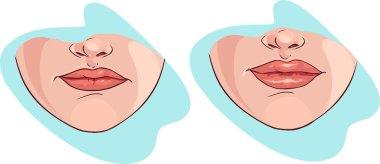 vector illustration of a lip filler