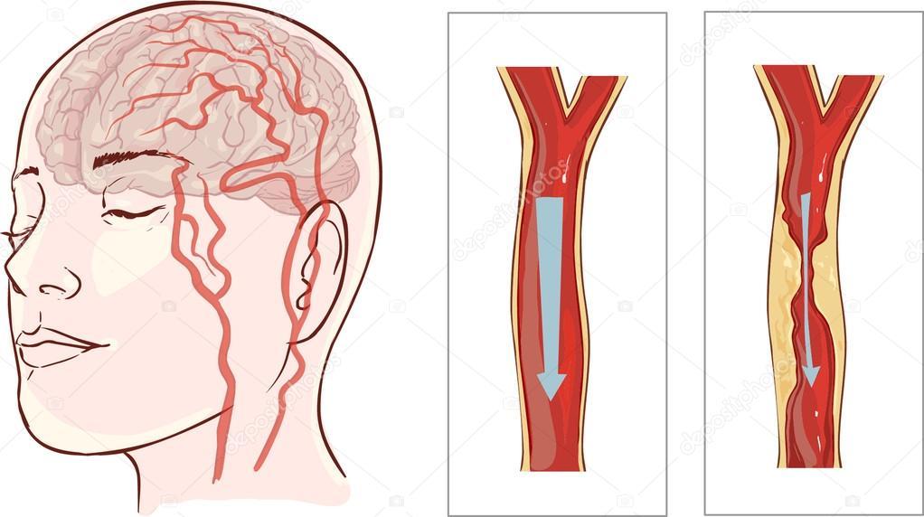 Hersenen anatomie diagram met verdeelde in verschillende kleuren en ...