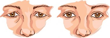 vector illustration of a eyelid lift