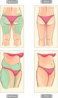 vector illustration of a liposuction
