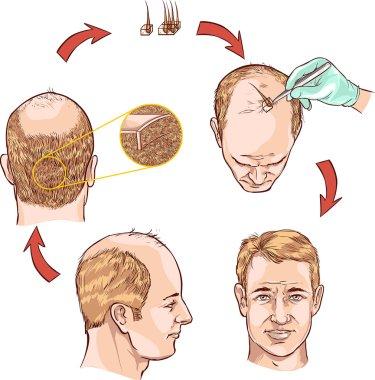 vector illustration of a hair transplantation