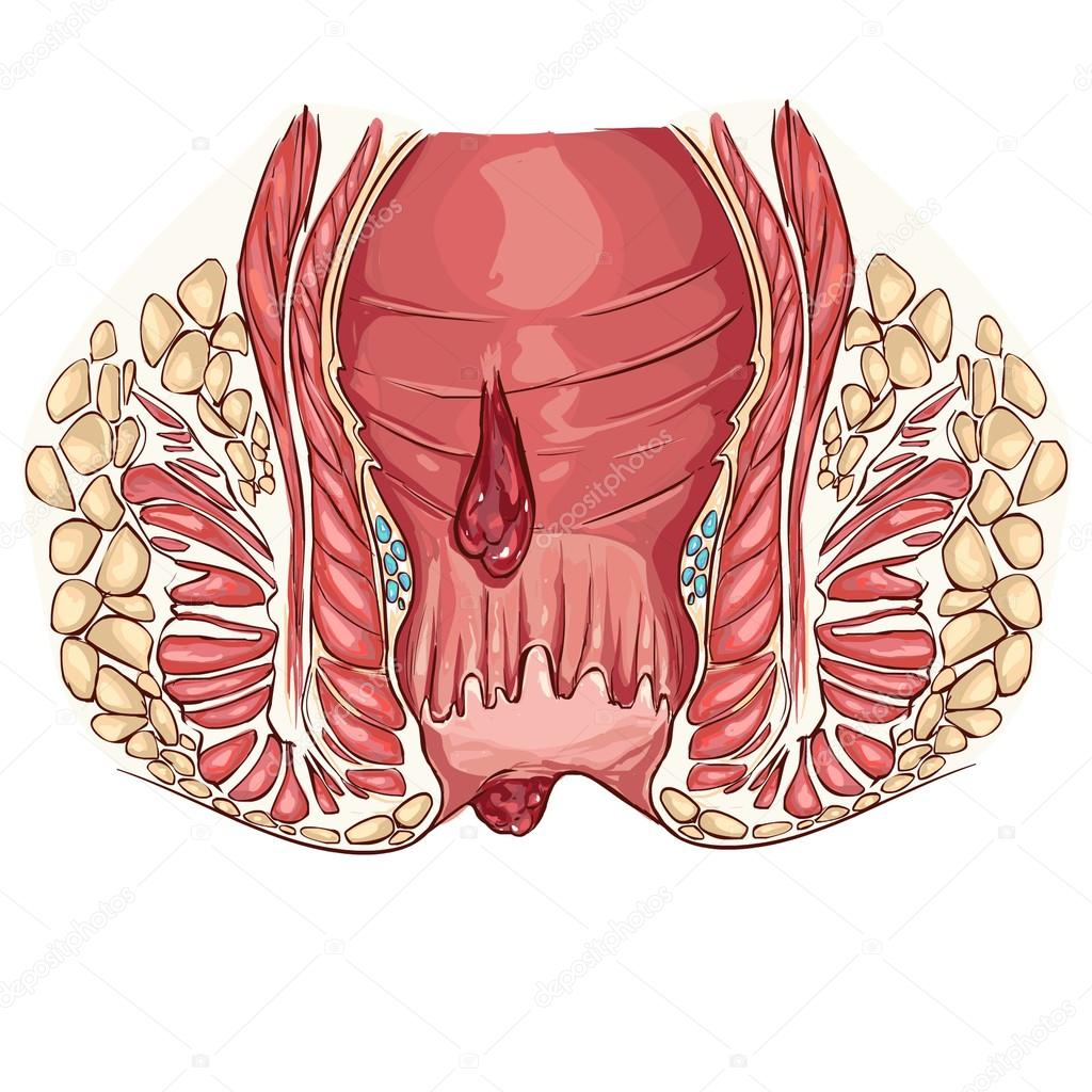 Vector Illustration Of A Hemorrhoids Stock Vector Corbacserdar