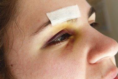 Woman with black eye
