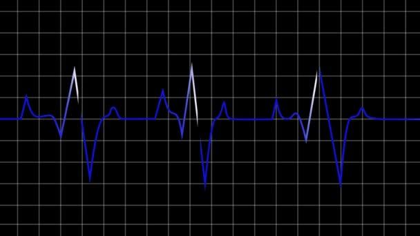 Animált hurok képes szívverés grafikus ábrázolt fekete grafikon háttér hasznos tudományos orvostudomány és a technológia alapú program